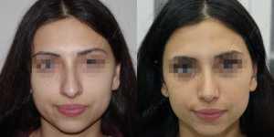 Ринопластика фото до и после —202
