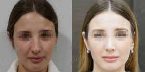 Ринопластика фото до и после —203