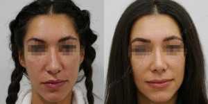 Ринопластика фото до и после —205